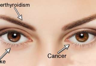 14-THINGS-YOUR-EYES-CAN-TELL-YOU-ABOUT-YOUR-HEALTH-IF-YOU-KNOW-WHAT-LOOK-FOR